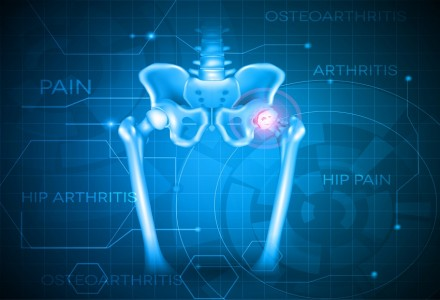 Natural Treatment Options for Degenerative Joint Disease