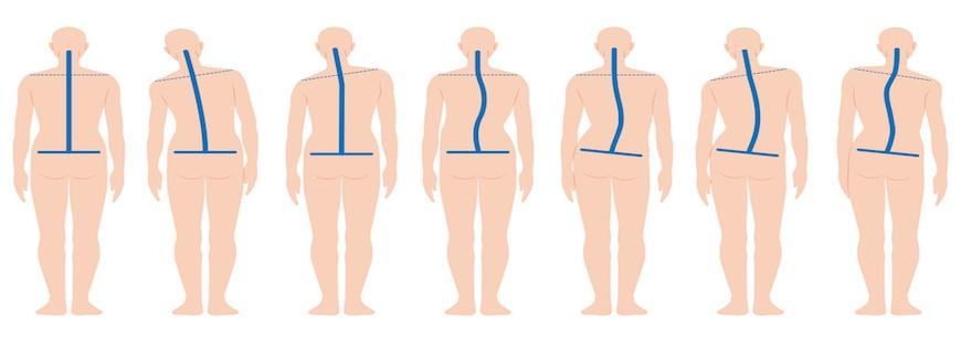 6 Science-Backed Tips to Improve Posture, Reduce Back Pain