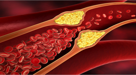 Can Vitamin D Help to Prevent Atherosclerosis?